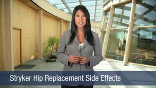 Video Stryker Hip Replacement Side Effects